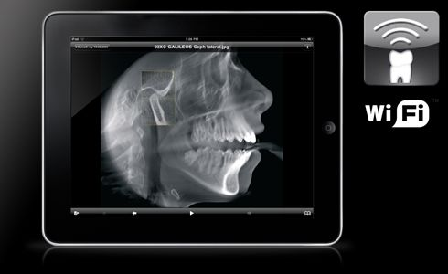 SidexisMobilePlugin for iPad,iPhone and iPod touch. Dispalys dental images on Apple's mobile devices.